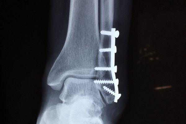 複雑骨折で曲がらない足首 │ bio...